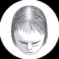 Afbeelding voor Haartransplantatie vrouwen
