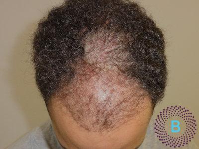 Haartransplantatie inhammen - voor