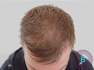 Haartransplantatie inhammen - na foto