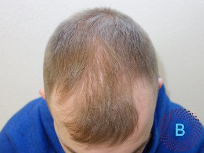 Haartransplantatie inhammen - voor foto