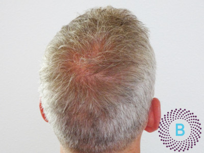 haartransplantatie kruin- na
