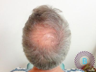 haartransplantatie kruin - voor