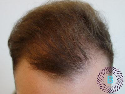 Voor foto haartransplantatie