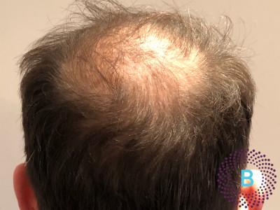Voor foto haartransplantatie kruin