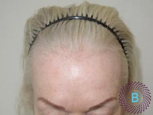 Voor foto haartransplantatie vrouwen