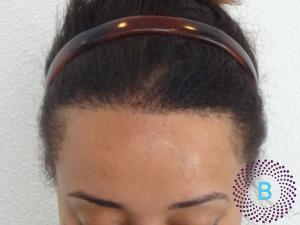 Na foto haartransplantatie vrouwen