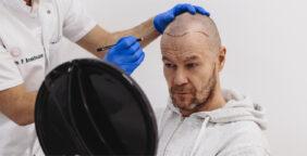 de haartransplantatie van gijs staverman
